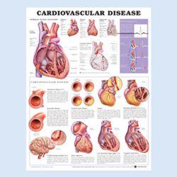 Wandplaat 'Cardiovascular Disease'