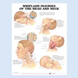 Wandplaat 'Whiplash Injuries of the Head & Neck'