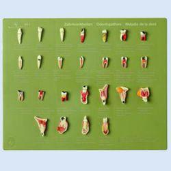 Demo-kast 'Odontopathies' (En/Du/Fr), 25 modellen