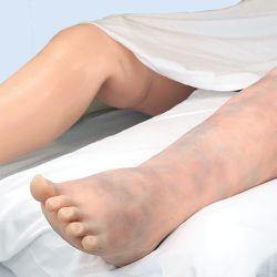 Trombose been met aderen voor Victoria pop