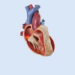 Hart met tetralogie van Fallot, 3x vergroot