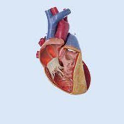 Hart met ventrikelseptumdefect, 3x vergroot