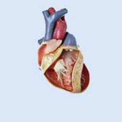Hart met atrium-septumdefect, 3x vergroot