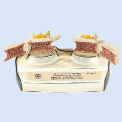 Osteoporose model, 3-delig