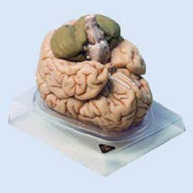 Hersenen, 8-delig