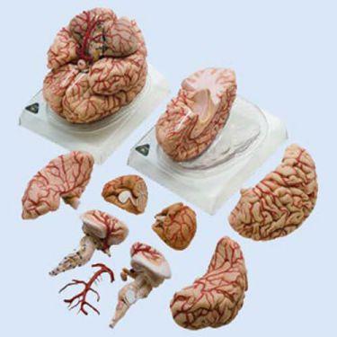 Hersenen met arteriàn, 9-delig