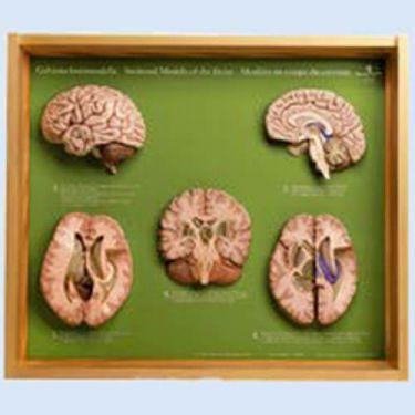 Hersendoorsnede-modellen, set van 5