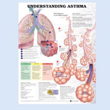 Wandplaat 'Understanding Asthma'