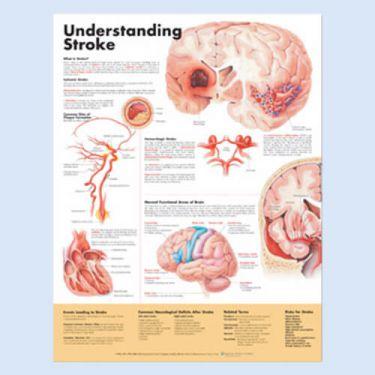 Wandplaat 'Understanding Stroke'