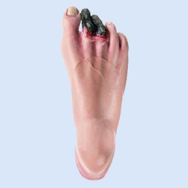 Rechter voet met decubitus en malperforans voor CLA oefenpop