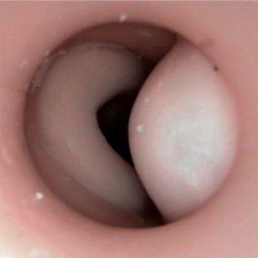 Rectal Examination Perineum - Pathology