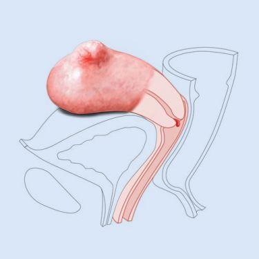 CFPT Module 3: Small Fibroid