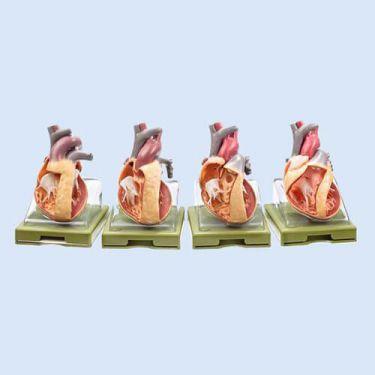 Serie aangeboren hartafwijkingen, 4 mod.: OS 7/1 t/m OS 7/4