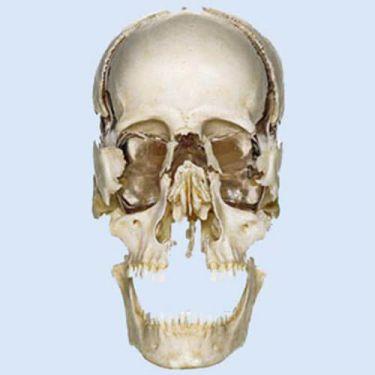 Ontplofte schedel van volwassene, 22-delig
